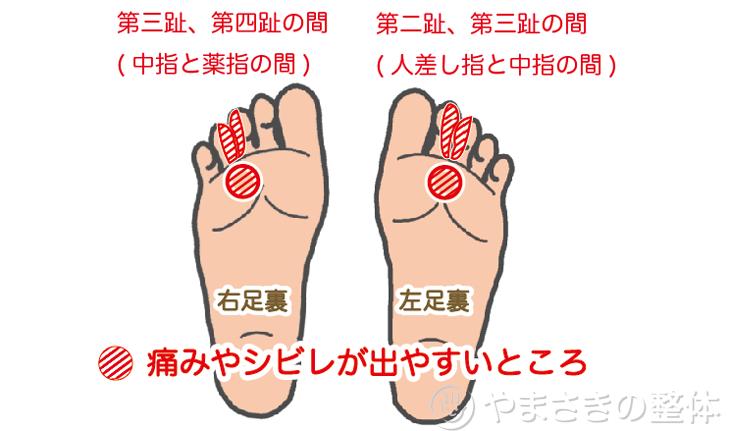 指 足 中指 の 痛い